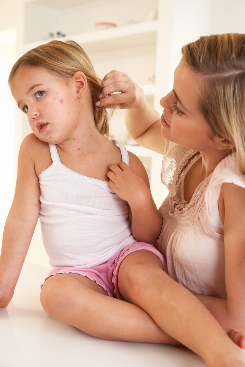 Can adults get chicken pox